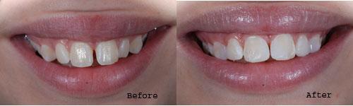 Bonding by Palacios Dentistry