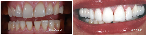 Extreme Makeover Cosmetic Dentistry at Palacios Dentistry