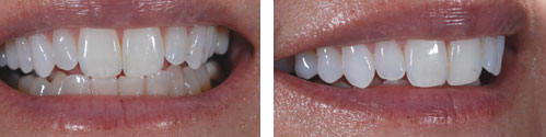 Teeth Whitening by Palacios Dentistry