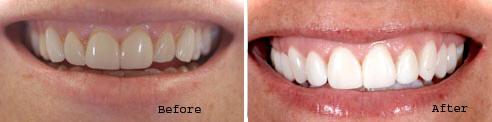 Porcelain Veneers by Palacios Dentistry
