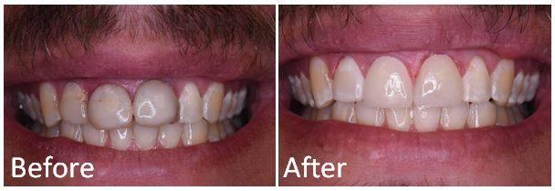 Dental Crowns by Palacios Dentistry