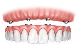 all-four-one dental implant